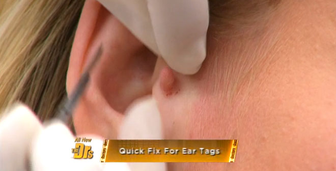 Live Surgical Procedure! Accessory Tragus Removal