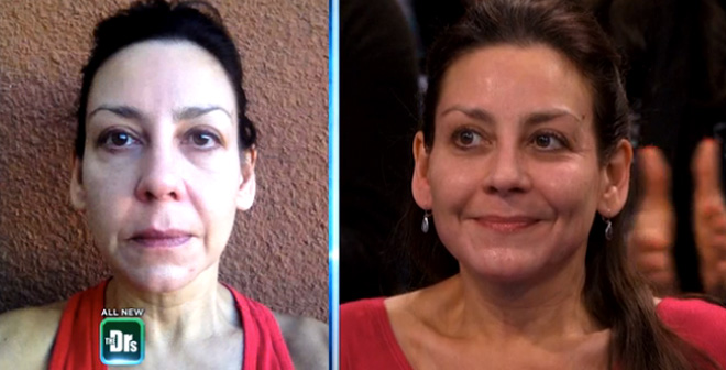 A 15-Minute Facelift
