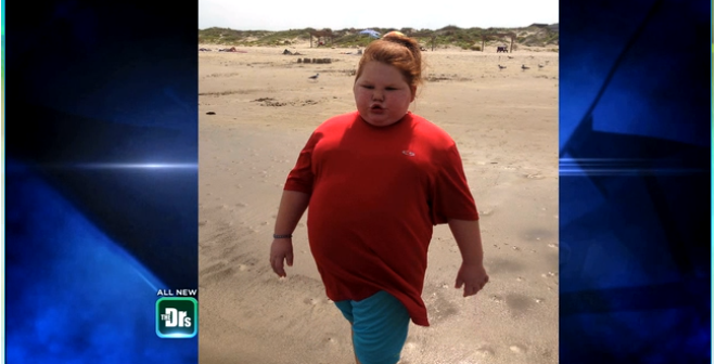 Gastric Bypass For 12-Year-Old?