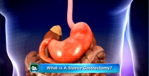 Weight Loss Surgery: Sleeve Gastrectomy